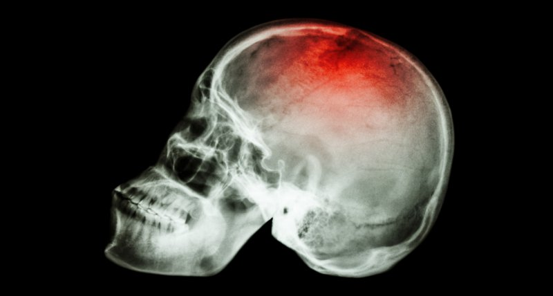 The Incidence and Management of Moderate to Severe Head Injury