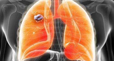 NSCLC mit Treibermutationen: Neues Immuntoxin mit vielversprechender Wirksamkeit