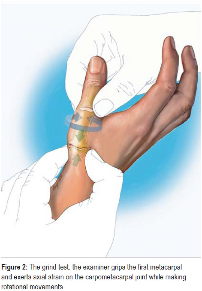 The grind test: the examiner grips the first metacarpal and exerts axial  strain on the
