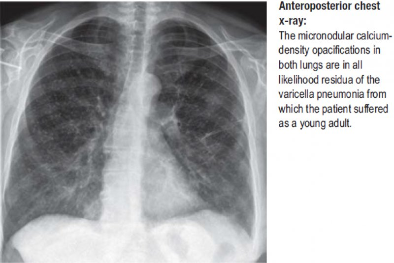 Anteroposterior chest x-ray