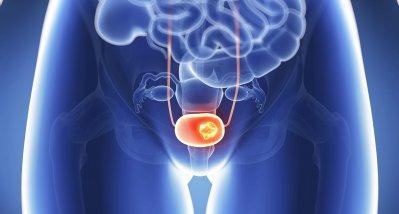Muskelinvasives Blasenkarzinom: Dosisdichte neoadjuvante Therapie neuer Standard