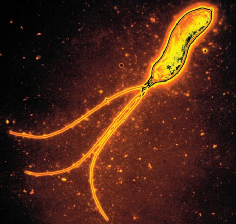 Helicobacter-pylori-Infektion