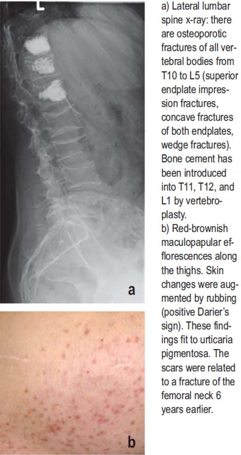 a) Lateral lumbar spine x-ray: there are osteoporotic fractures of all vertebral bodies from T10 to L5 (superior endplate impression fractures, concave fractures of both endplates, wedge fractures). Bone cement has been introduced into T11, T12, and L1 by vertebroplasty. b) Red-brownish maculopapular efflorescences along the thighs. Skin changes were augmented by rubbing (positive Darier's sign). These findings fit to urticaria pigmentosa. The scars were related to a fracture of the femoral neck 6 years earlier.