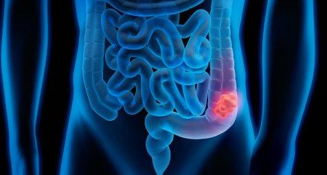 Darmkrebsfr-herkennung-Gastroenterologen-sehen-Privatversicherte-benachteiligt