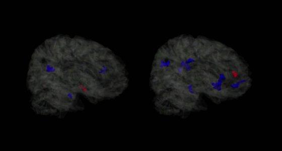 Blau markiert sind Bereiche, in denen mehr Kopfbälle zu einem niedrigeren FA-Level geführt haben. Gleichzeitig stimmen diese blauen Regionen mit geschädigtes Hirngewebe überein. Die roten Bereiche weisen höhere FA-Level auf, was möglicherweise eine kompensatorische Reaktion auf eine Verletzung oder einen Trainingseffekt darstellt. (links: männliches Gehirn; rechts: weibliches Gehirn) /Todd Rubin Albert Einstein College of Medicine