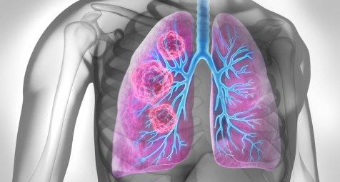 Tumormutationslast beim NSCLC prädiktiv für Ansprechen auf...