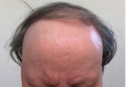 A Slowly Receding Hairline