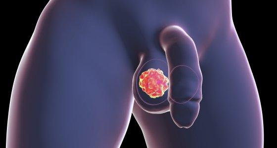 Das Seminom ist die häufigste Form von Hodenkrebs. /Kateryna_Kon, stockasobecom