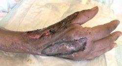 Tuberculous Tenosynovitis