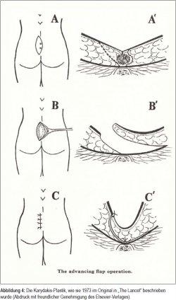 Heilungsdauer steißbeinfistel Steißbeinfistel: Symptome,
