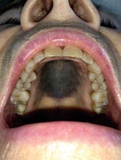 Großflächige grau-blaue Makula am harten Gaumen als Nebenwirkung von Imatinib