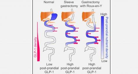 Wie bariatrische operationen die verdauung ver ndern for Medizin studieren schweiz
