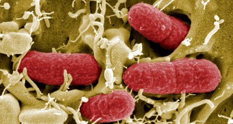 Wie ein Toxin aus E. coli Darmkrebs auslöst