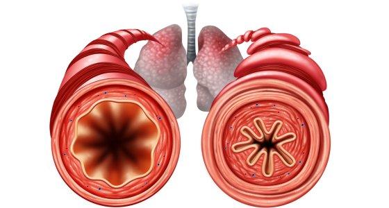 Die Anatomie eines Asthma-Anfalls (rechts): Die Bronchialmuskulatur zieht sich zusammen und schnürt so die Atemwege ein. /freshidea stock.adobe.com