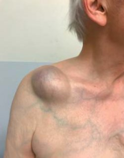 Progressive Prominent Swelling Over the Acromioclavicular Joint
