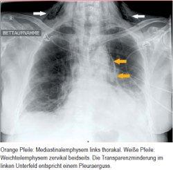 Orange Pfeile: Mediastinalemphysem links thorakal. Weiße Pfeile: Weichteilemphysem zervikal beidseits. Die Transparenzminderung im linken Unterfeld entspricht einem Pleuraerguss.