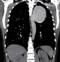 Late Complication After Surgical Treatment of Aortic Isthmus Stenosis