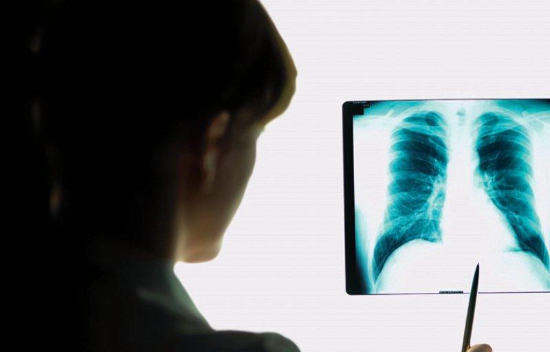 Mit Tuberkulosebakterien infizierten sich 2017 pro 100 000 Einwohnern im Schnitt 6,7 Menschen. Foto: mauritius images