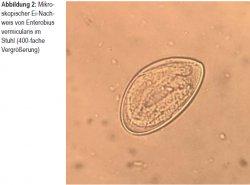 Enterobius vermicularis, Parazit tablete - Enterobius vermicularis je
