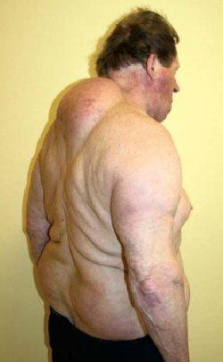 Multiple Symmetric Lipomas in a 63-Year-Old Man
