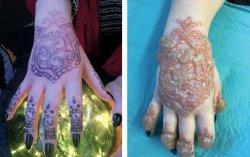 Bullous Contact Dermatitis Following a Henna Tattoo—an Unwanted Vacation Souvenir