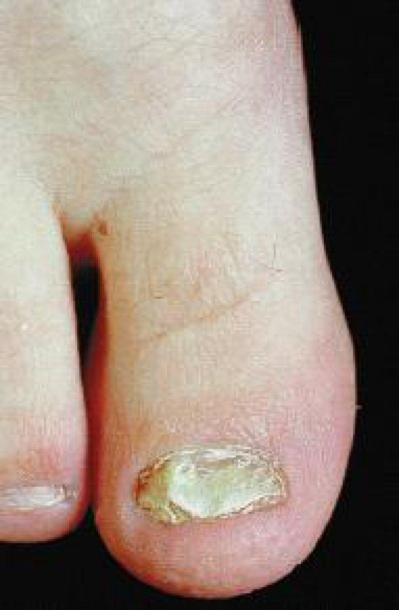 Für die Therapie der Onychomykose ist die Abschätzung des Befallgrades wichtig.Foto: OKAPIA