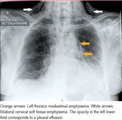 Orange arrows: Left thoracic mediastinal emphysema. White arrows: Bilateral cervical soft tissue emphysema. The opacity in the left lower field corresponds to a pleural effusion.