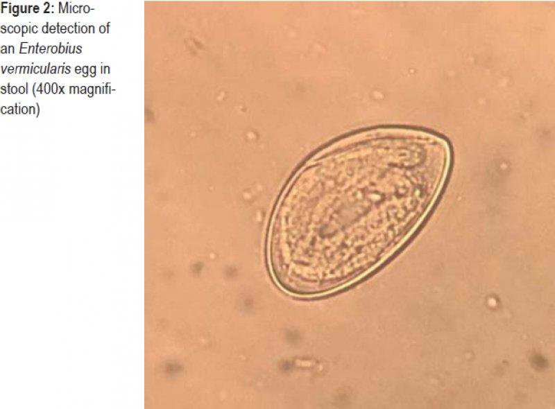 Recenzii de curățare a corpului. Enterobius vermicularis klinik
