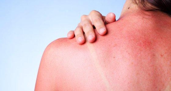 Sonnenbrand auf einer Schulter /jivimages adobe.stock.com