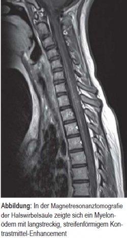 In der Magnet resonanztomo grafie der Hals wirbelsäule zeigte sich ein Myelonödem mit lang streckig, streifenförmigem Kontrastmittel- Enhancement