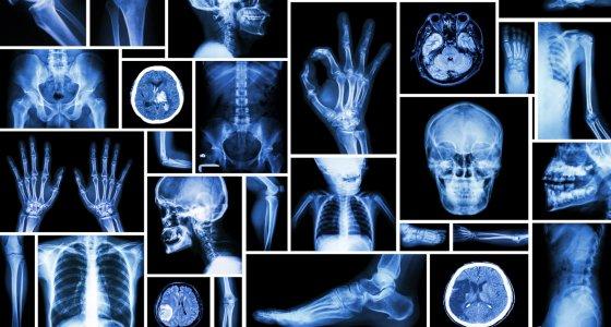 Sammlung von Röntgenbildern, die mehrere Teile des Menschen enthalten. /stockdevil, stock.adobe.com