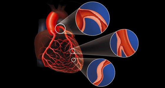 Drei Formen der Koronarstenose sind dargestellt mit einem Herz. /lom123 adobe.stock.com