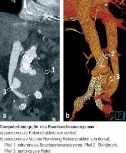 Computertomografie des Bauchaortenaneurysmas