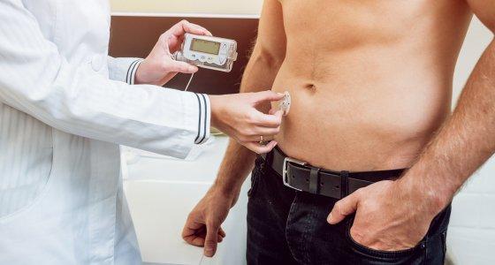 Arzt befestigt eine Insulinpumpe beim Patienten. /romaset stock.adobe.com
