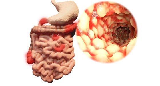 Morbus Crohn im Gastrointestinaltrakt /Juan Gärtner AdobeStock.com