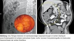 links: Röntgen-Abdomen mit weintraubenartigen Gasansammlungen im rechten Oberbauch sowie Endoskopiebild mit multiplen submukösen Zysten; rechts: koronare Computertomografie mit intramuralen Gaseinschlüssen der rechten Kolonflexur