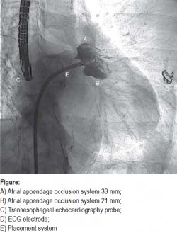 A) Atrial appendage occlusion system 33 mm; B) Atrial appendage occlusion system 21 mm; C) Transesophageal echocardiography probe; D) ECG electrode; E) Placement system