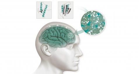 Antisense-Oligonukleotide könnten bei Prionen-Erkrankungen...