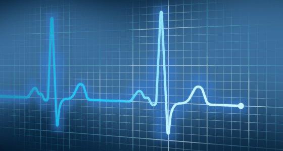 EKG Sinus/photomelon, AdobeStock.com