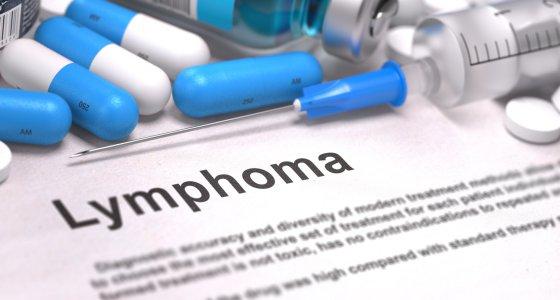 In den USA und Westeuropa ist das follikuläre Lymphom für 20 bis 35 Prozent aller neu diagnostizierten Patienten mit Non-Hodgkin-Lymphom (NHL) verantwortlich. /tashatuvango, AdobeStock.com
