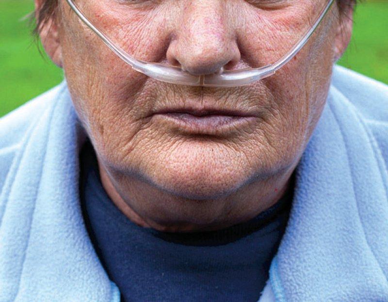Menschen in Niedersachsen und Thüringen sind besonders von der chronisch obstruktiven Lungenerkrankung betroffen, sagt das Zi. Foto: urbans78/stock.adobe.com
