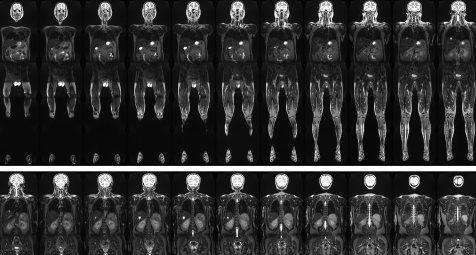 Künstliche Intelligenz soll MRT-Auswertung beschleunigen