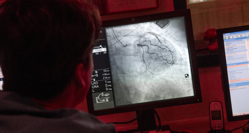 Am Monitor verfolgt ein Kardiologe die Einführung eines Herzkatheters. /picture alliance