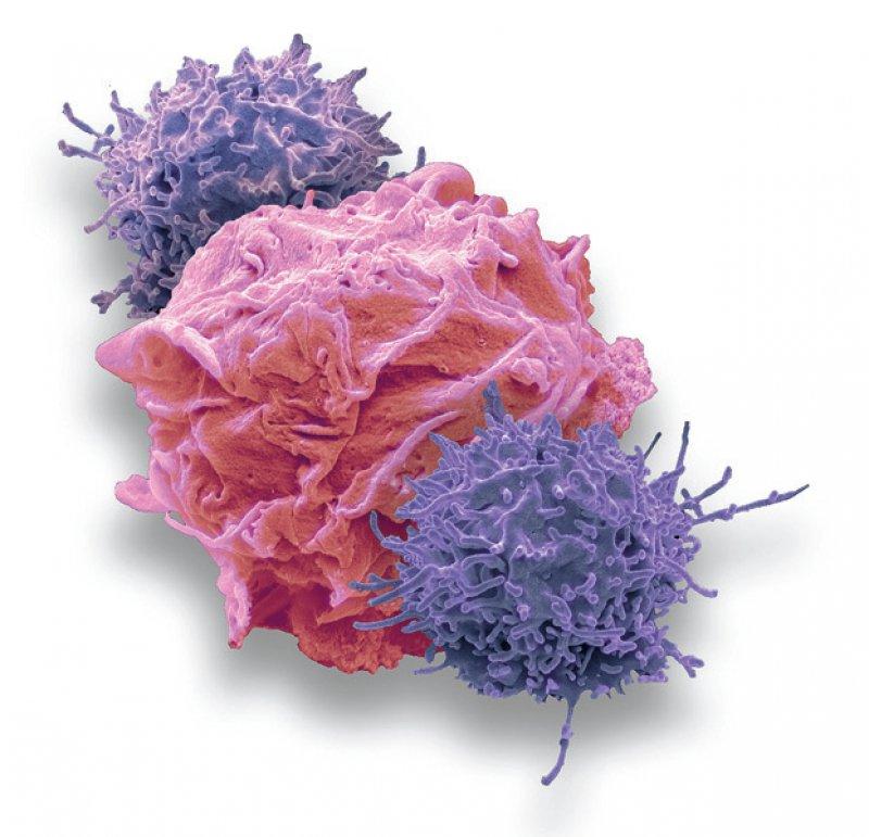 Neue Krebstherapien mit gentechnologisch veränderten Immunzellen sind zumeist extrem teuer. Foto: Science Photo Library/Steve Gschmeissner