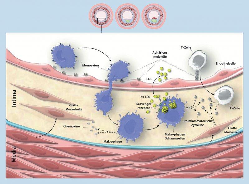 Wichtige inflammatorische Mechanismen in der Entstehung der Atherosklerose. Foto: Aus Kiechl S, Werner P, Knoflach M, et al. (51)