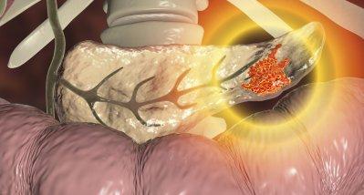 Protein erhöht Sterblichkeit bei Männern mit Pankreaskarzinom, Darmkrebs und Melanom