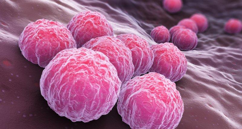 Anwender der Präexpositionsprophylaxe erkranken in Metaanalyse häufig an anderen sexuell übertragbaren Erkrankungen