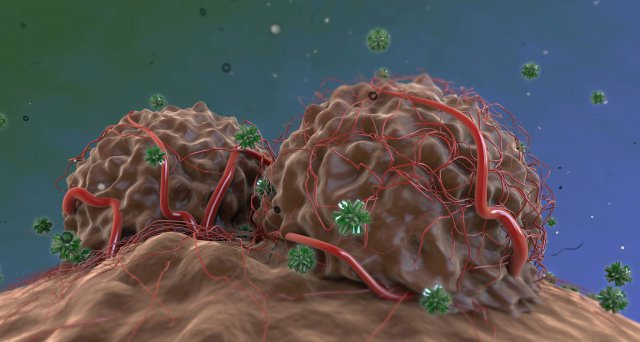 Patienten mit seltenen Krebserkrankungen profitieren von molekularer Analyse