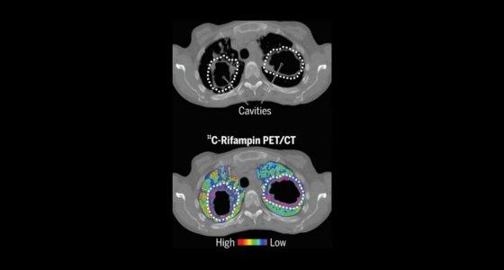 Der CT-Scan oben zeigt die Lage von 2 Lungenhohlräumen. Im unteren PET/CT-Bild erkennt man das Versagen eines radioaktiv markierten Anti-TB-Medikaments (farbig dargestellt), in diese Hohlräume zu gelangen und die darin eingeschlossenen Mikroben anzugreifen. /Johns Hopkins Medicine