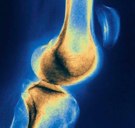 Konservative oder operative Therapie bei Erstluxation der Patella